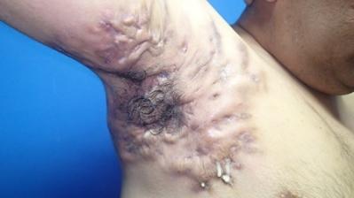Aspecto de un absceso de hidrosadenitis supurativa